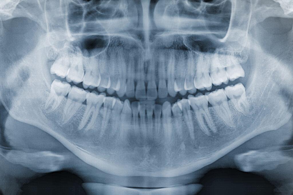 Röntgenbild zum Knochenaufbau
